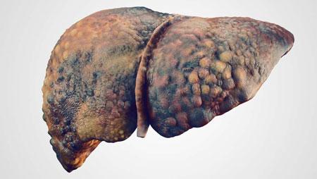 خرابی کلیه از عوارض ناس