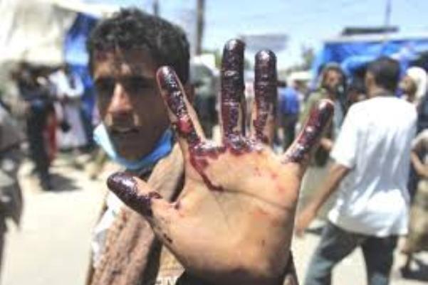 آیا عربستان در باتلاق یمن تنها رها شده است؟