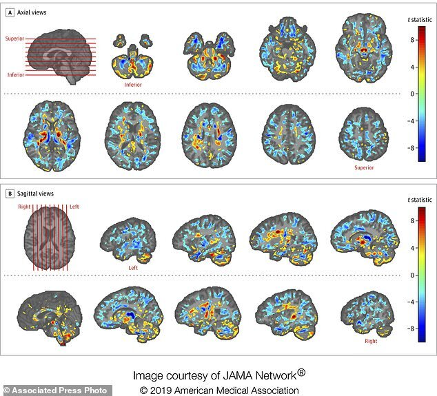 مغز کارمندان سفارت آمریکا در کوبا