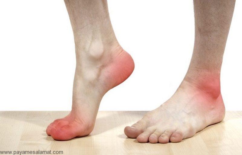 درمان پا درد
